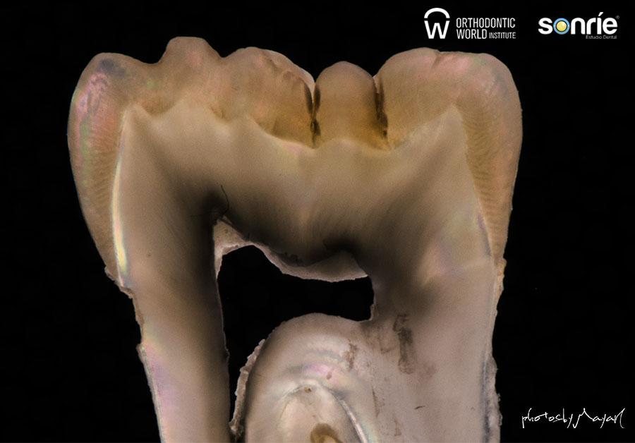 Fotografía dental 4