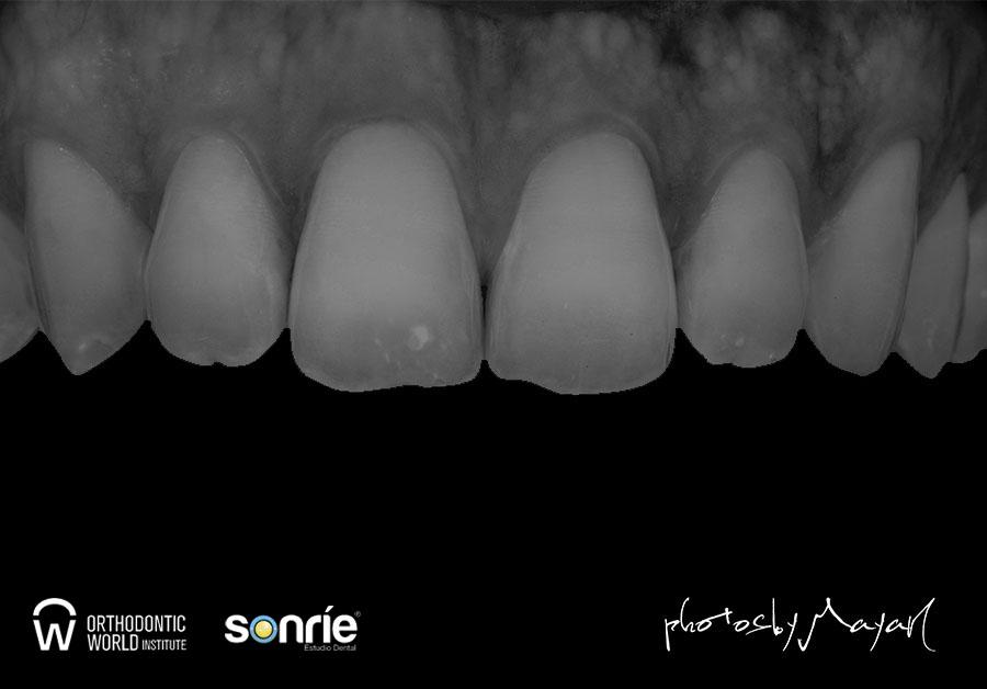 Fotografía dental 12