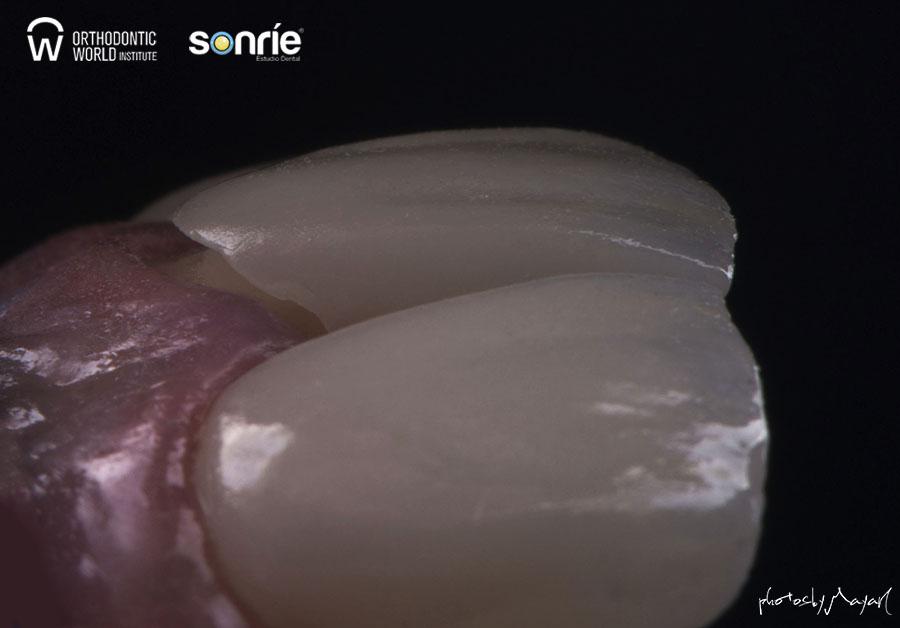 Fotografía dental 6