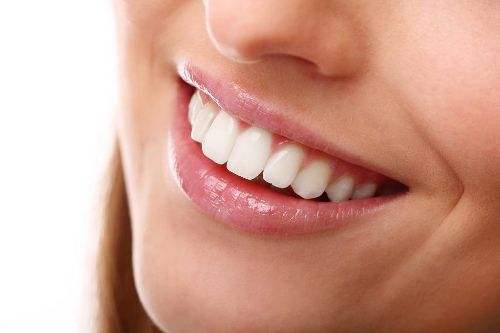 preguntas frecuentes sobre una ortodoncia lingual